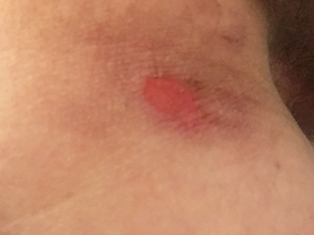 Saddle-sore selfie, about the size of a quarter